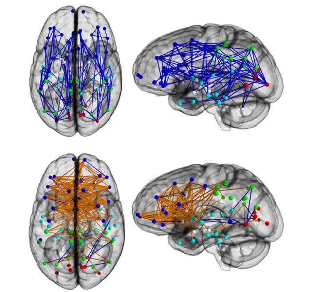 Brain networks show increased connectivity from front to back and within one hemisphere in males (upper) and left to right in females (lower). Image by Ragini Verma, PhD, Proceedings of the National Academy of Sciences.